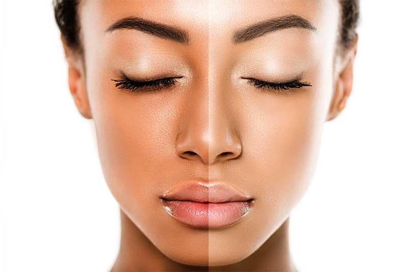 skin lightening cream for dark skin