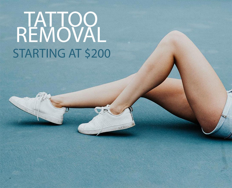 Tattoo Removal Cost