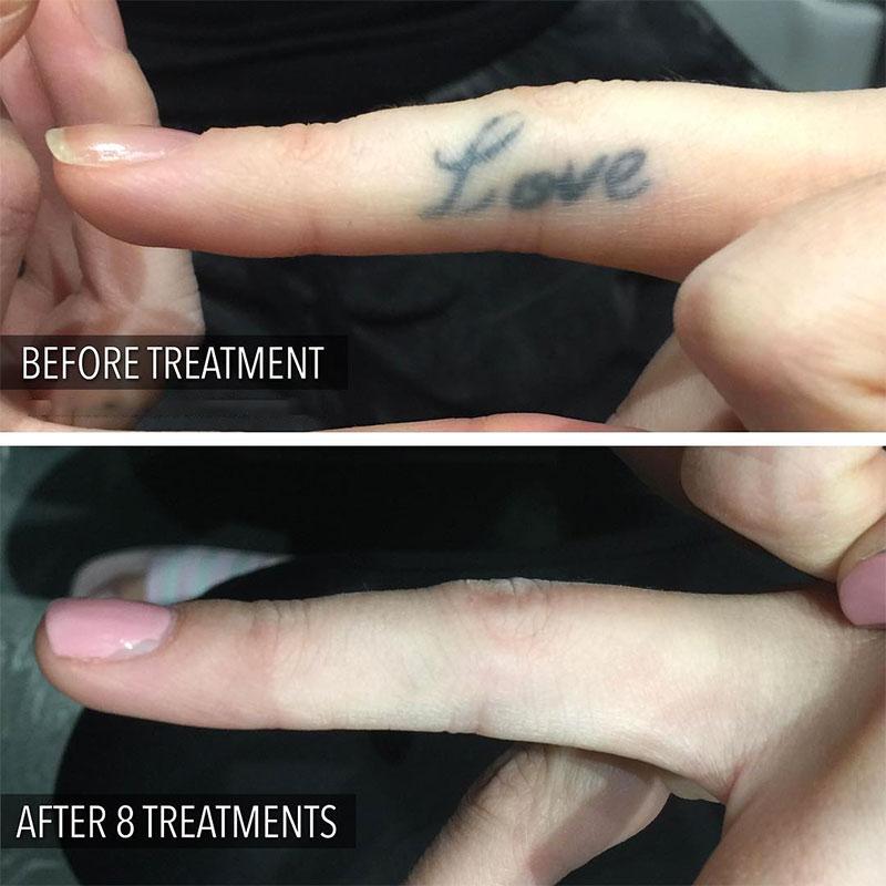 Tattoo Removal Studio