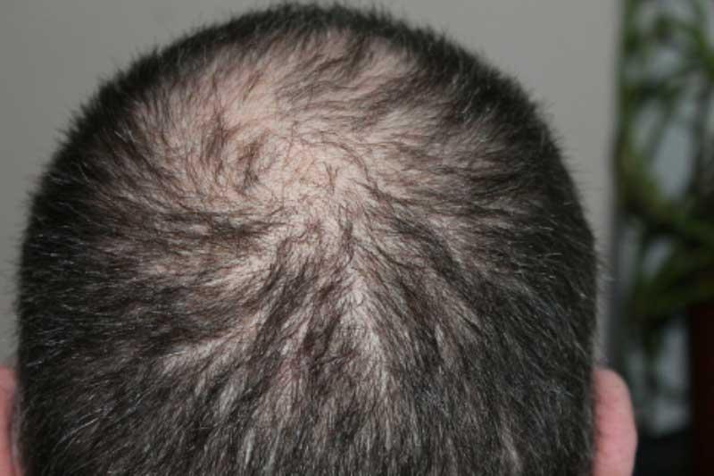 Myths Concerning Scalp Micropigmentation Procedures