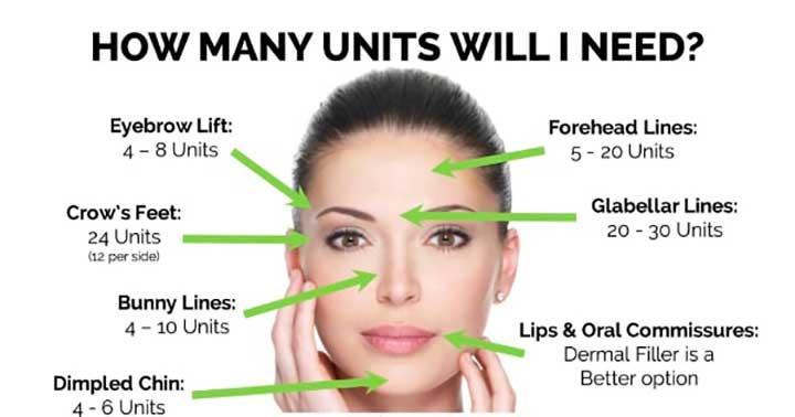 botox how many units