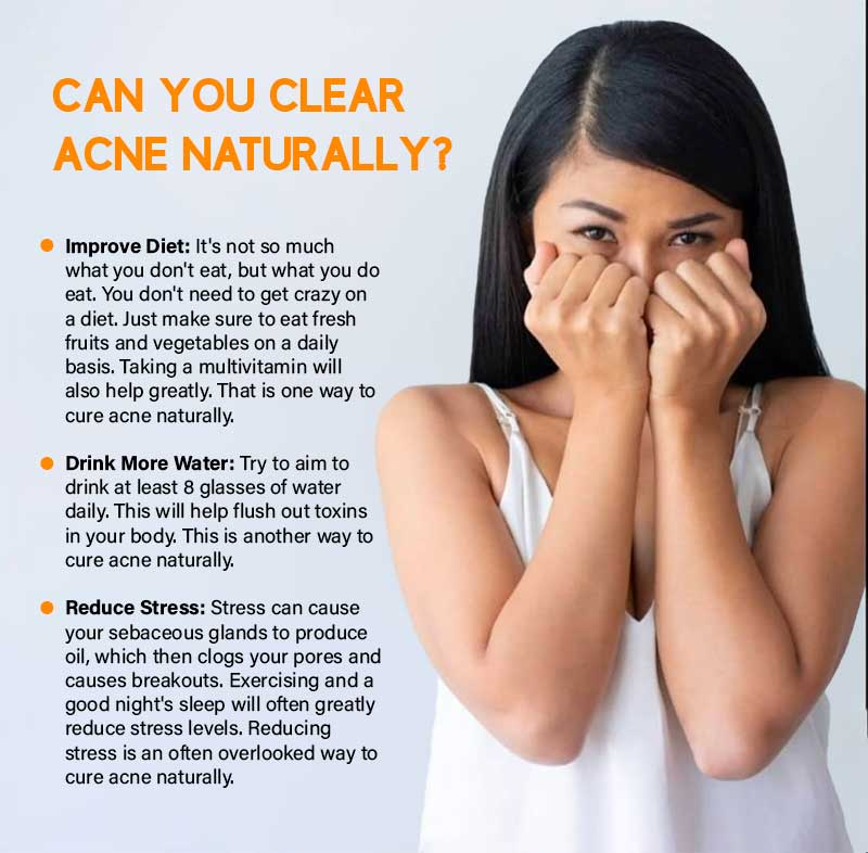 Can You Clear Acne Naturally