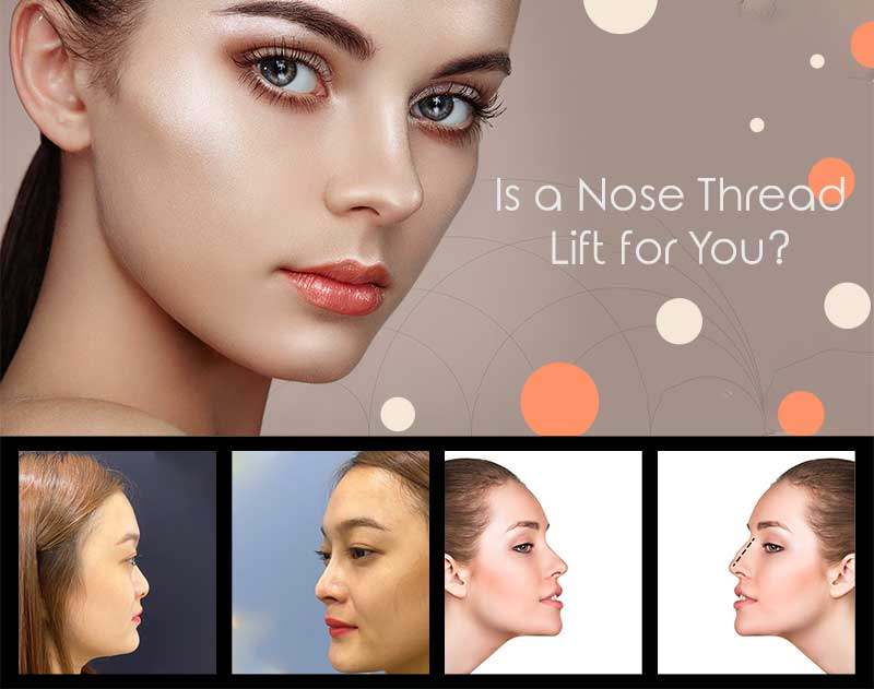 Nose Thread Lift? How it works and how it can help you to increase your confidence