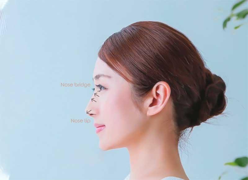 nose thread lift treatment