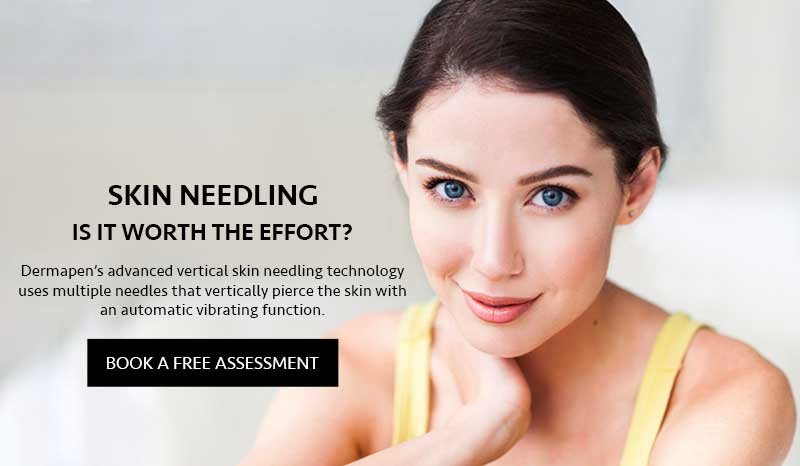 Skin Needling: Is it Worth the Effort?