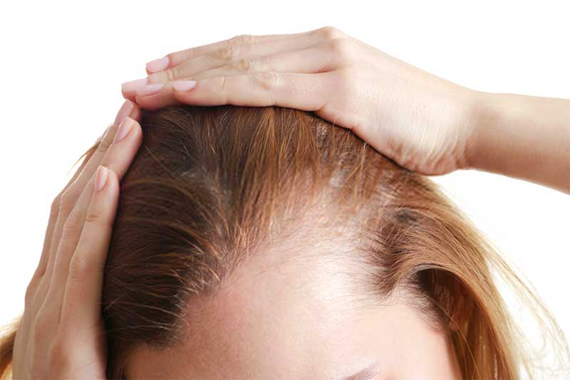 Some ringworms fungal infections can also cause hair loss