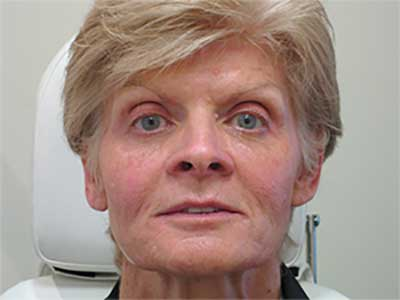 After dermal fillers and anti-wrinkle injections