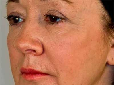 Cheeks after Treatment with Dermal Fillers