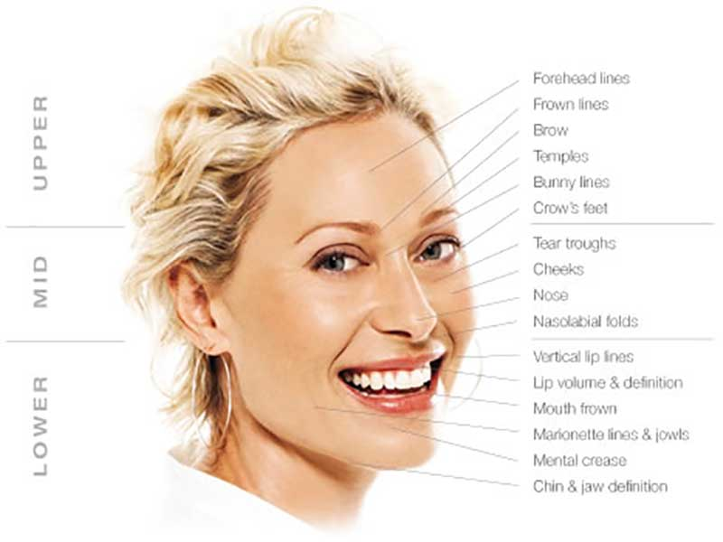 Effects of Volume Loss. Aging at Different Levels
