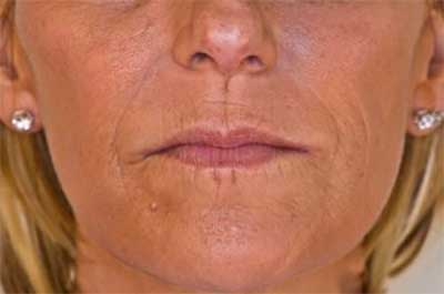 Nasolabial lines After Treatment with Dermal Fillers