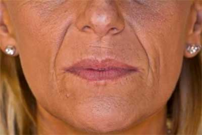 Nasolabial lines Before Treatment with Dermal Fillers