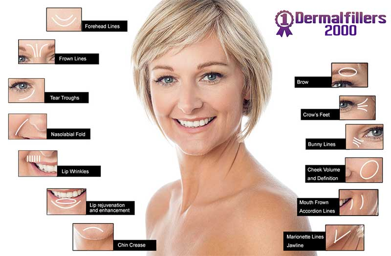 Reduce lines and improve facial contours with dermal fillers