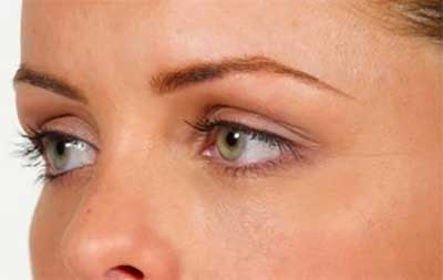 Tear Troughs After Treatment with Dermal Fillers