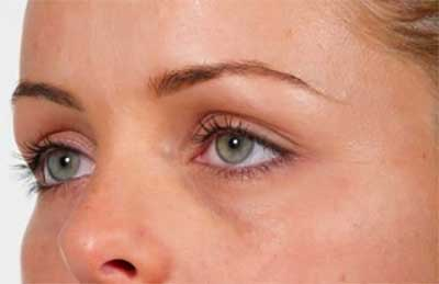 Tear Troughs Before Treatment with Dermal Fillers