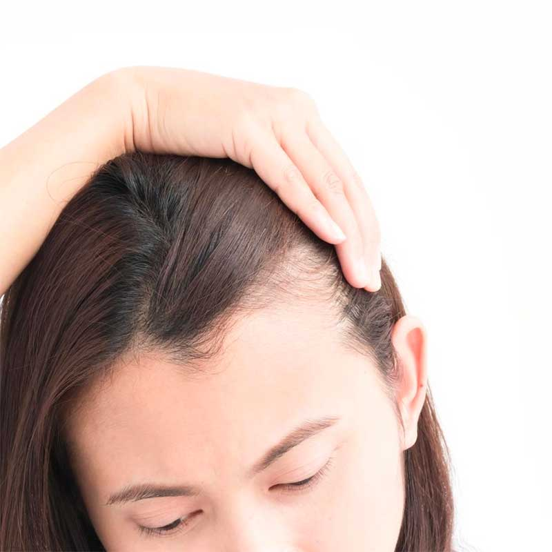 Difference between Hair Loss and Hair Shedding