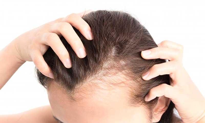 Hair Loss Symptoms in Men and Women