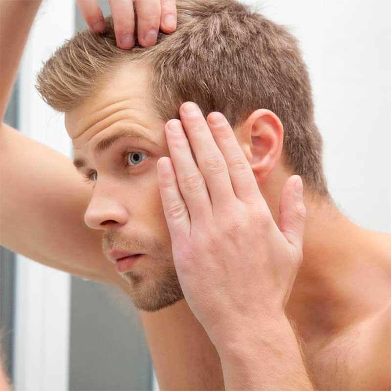 Hair loss Pattern in Men