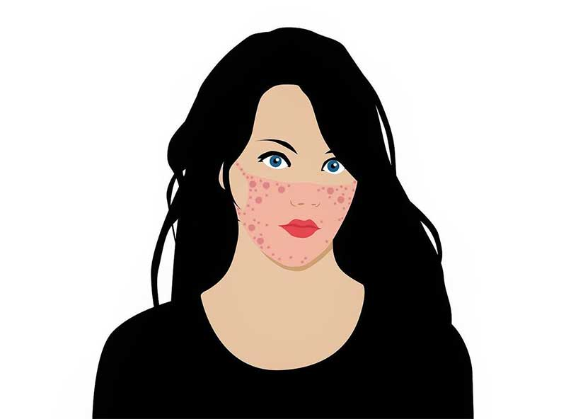How to prevent acne from face masks