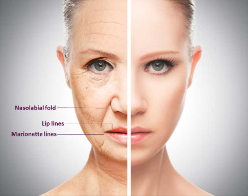 Things to Consider Before Using Facial Dermal Fillers to Rejuvenate your Face