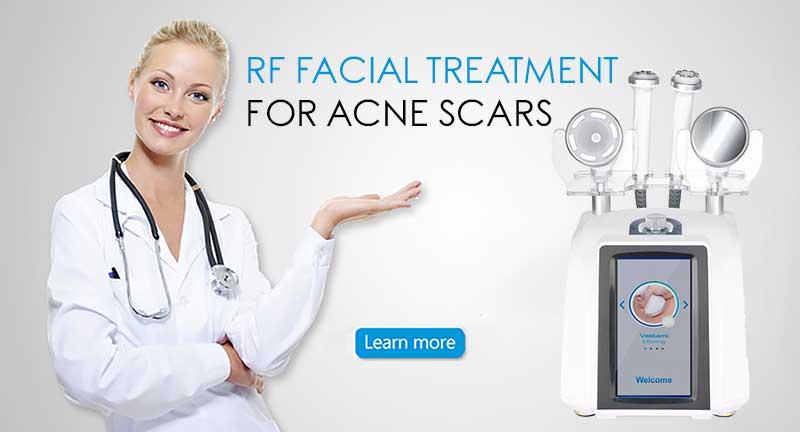RF Facial Treatment for Acne Scars