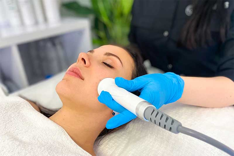 Radiofrequency Treatment in Acne Scars