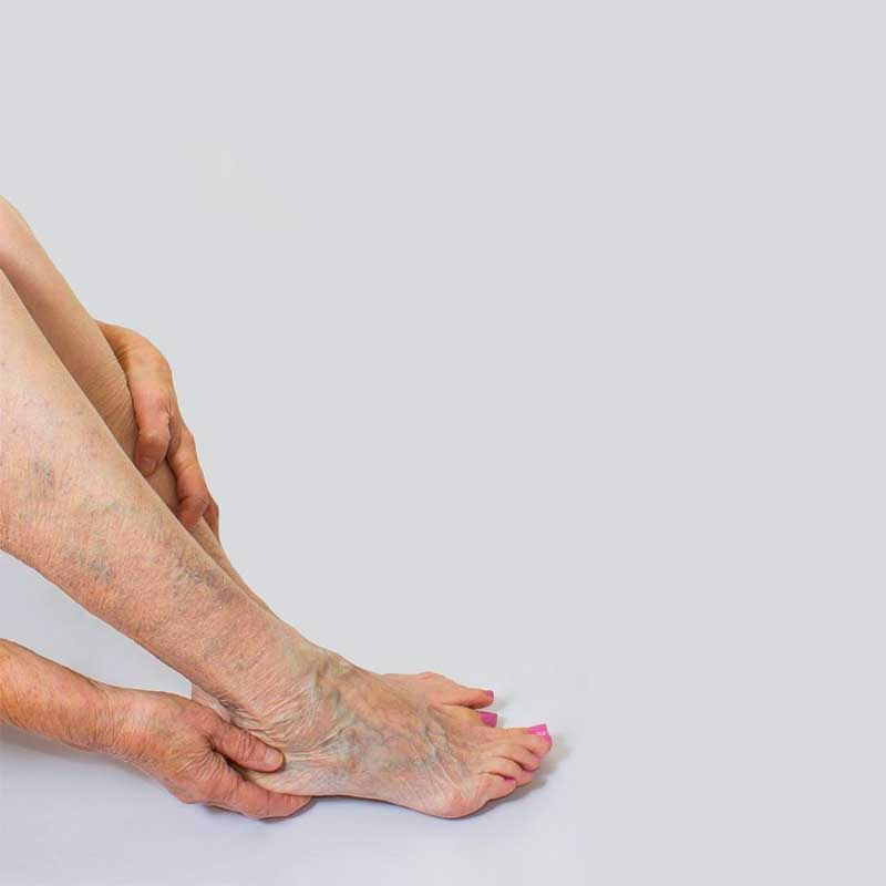 Spider veins: Causes, treatment, and prevention