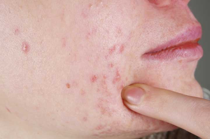 A Quick Guide to LED Acne Treatment
