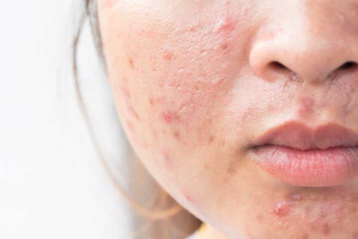 6 Different Types of Face Acne, Explained