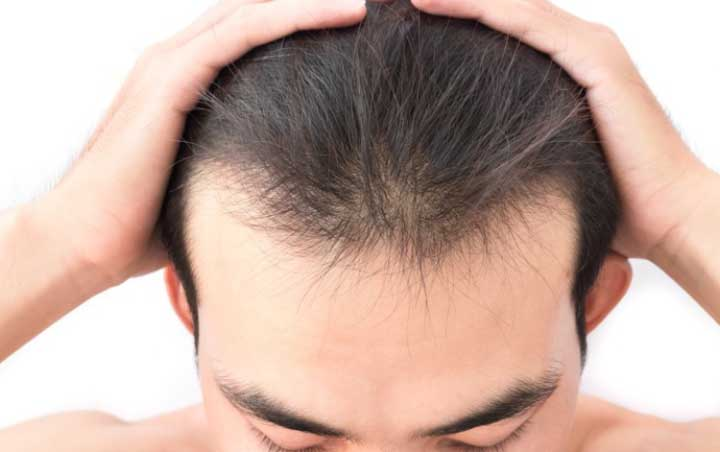 Expert Advice on How to Regrow a Receding Hairline