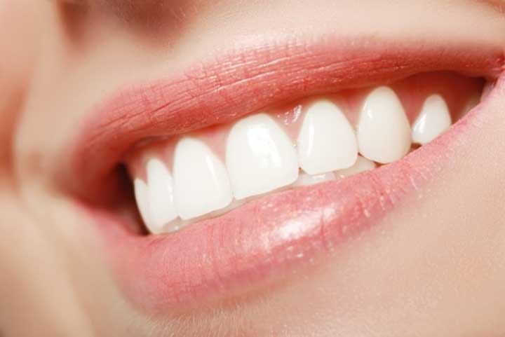 How to Get a Better Smile: 5 Effective Tips