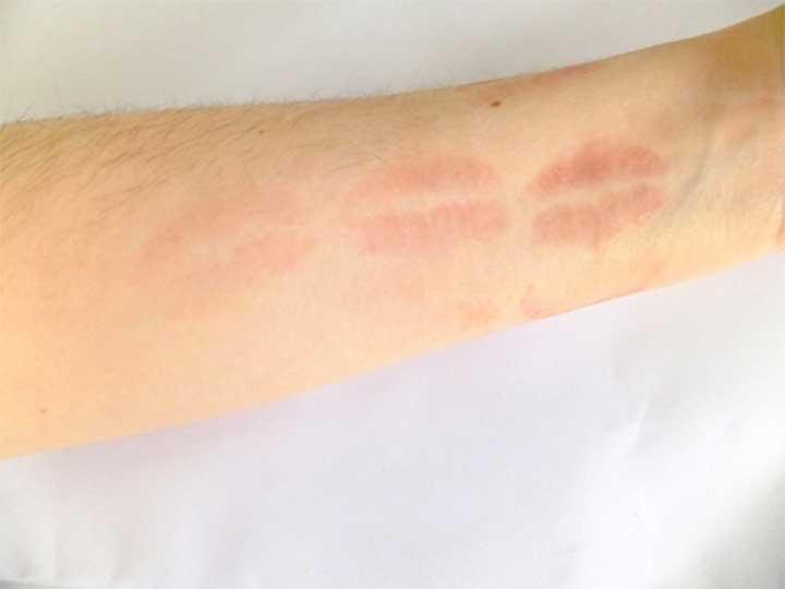Lipstick Test Arm Osmosis