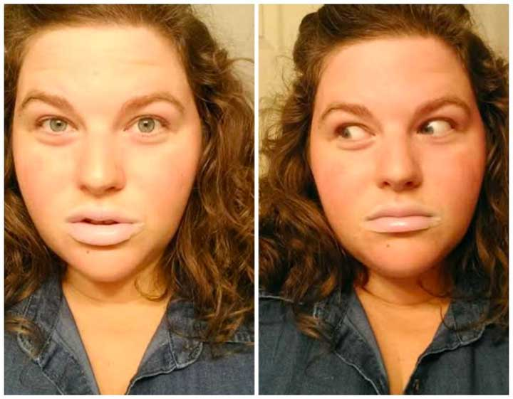 Do lip masks help chapped lips?