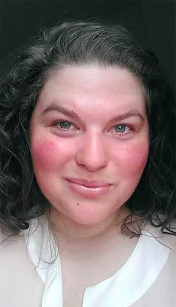 Pur Minerals Green Primer Saved My Red Cheeks: red cheeks