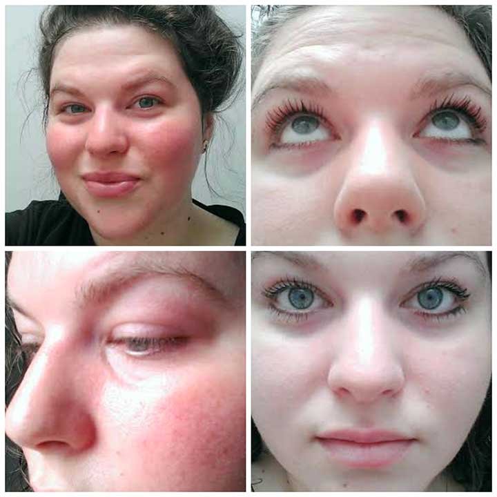 Roller lash before and after