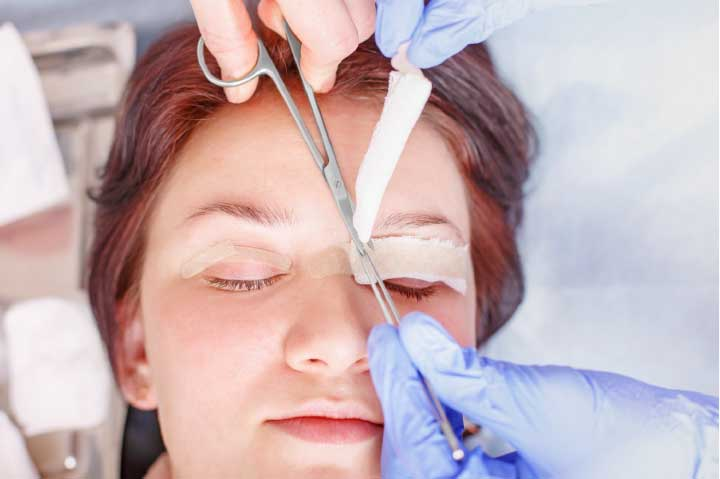 Tips for Blepharoplasty Recovery