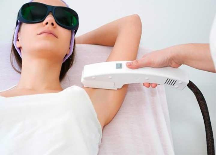 Considering Laser Hair Removal