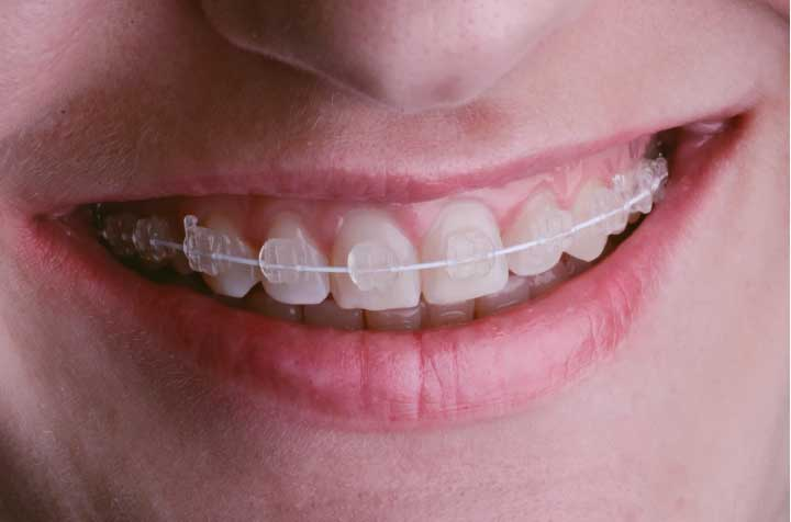 What Are the Different Types of Braces